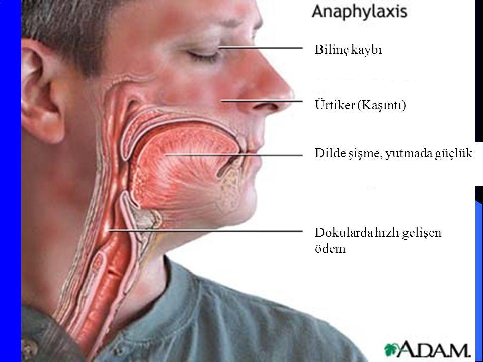 Bilinç kaybı Ürtiker (Kaşıntı) Dilde şişme, yutmada güçlük Dokularda hızlı gelişen ödem
