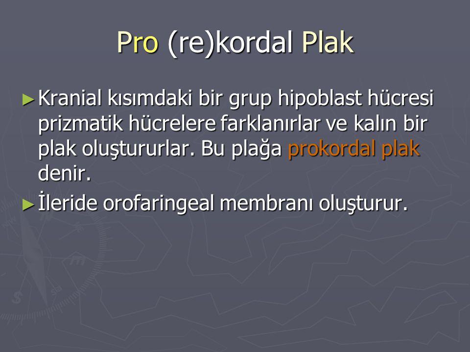 Pro (re)kordal Plak