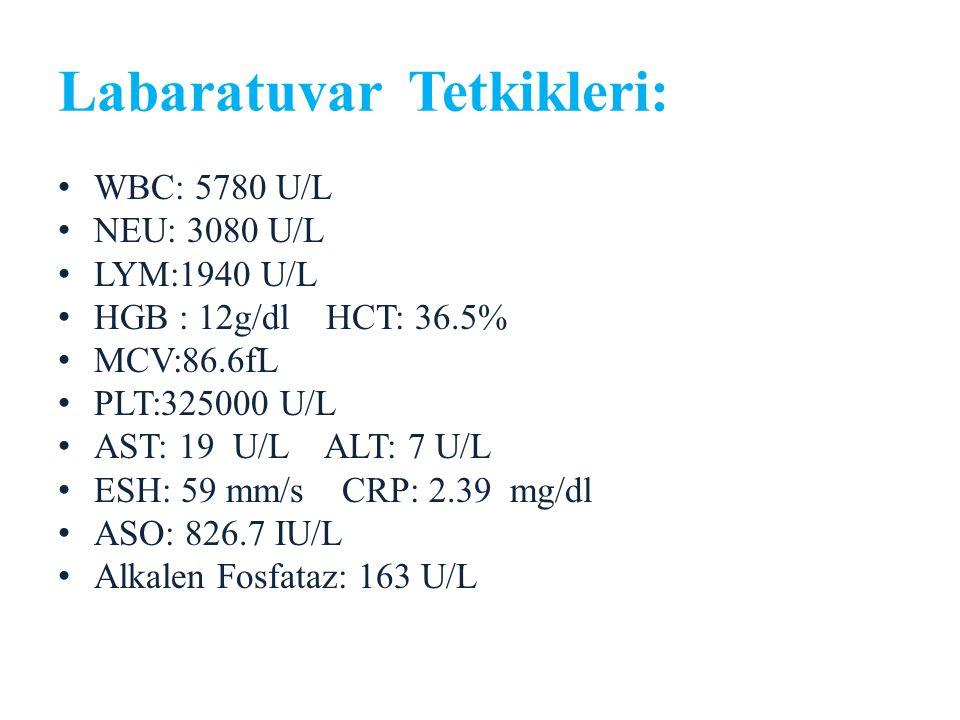 Labaratuvar Tetkikleri: