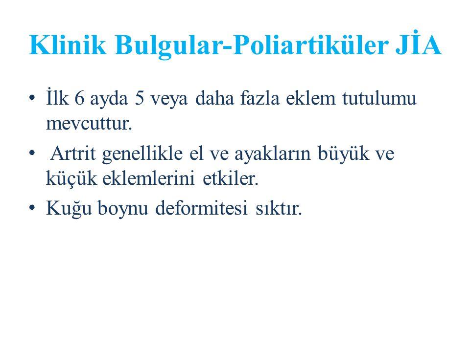 Klinik Bulgular-Poliartiküler JİA