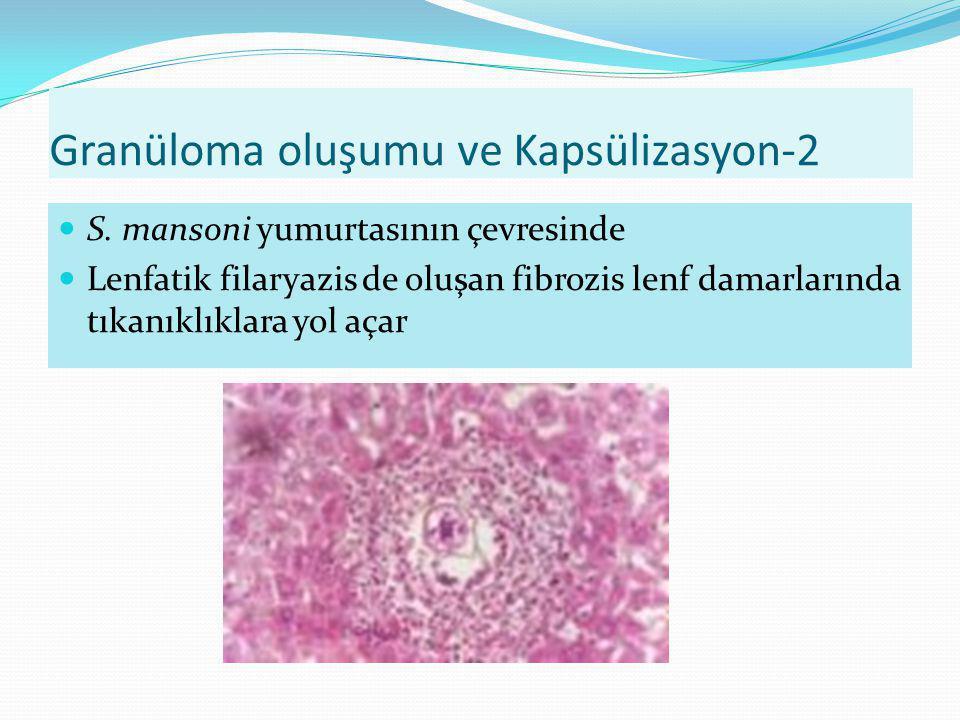 Granüloma oluşumu ve Kapsülizasyon-2