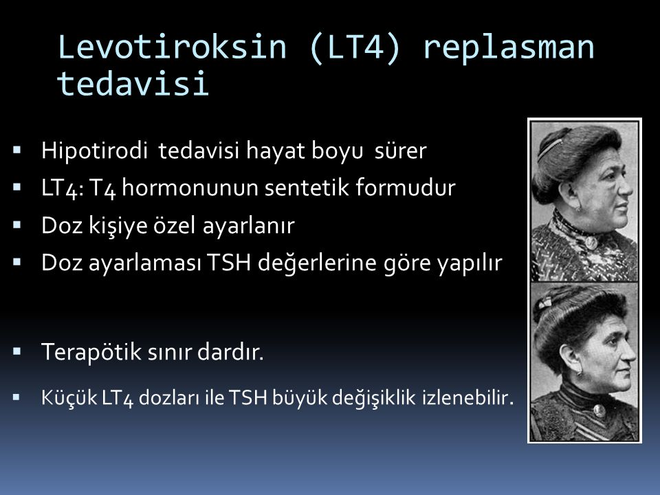 Levotiroksin (LT4) replasman tedavisi