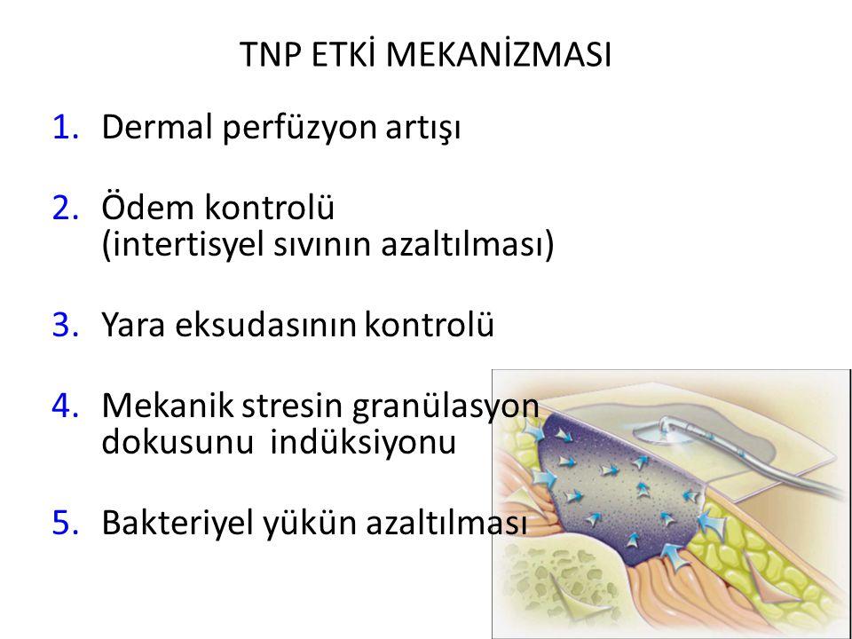 TNP ETKİ MEKANİZMASI Dermal perfüzyon artışı. Ödem kontrolü (intertisyel sıvının azaltılması)