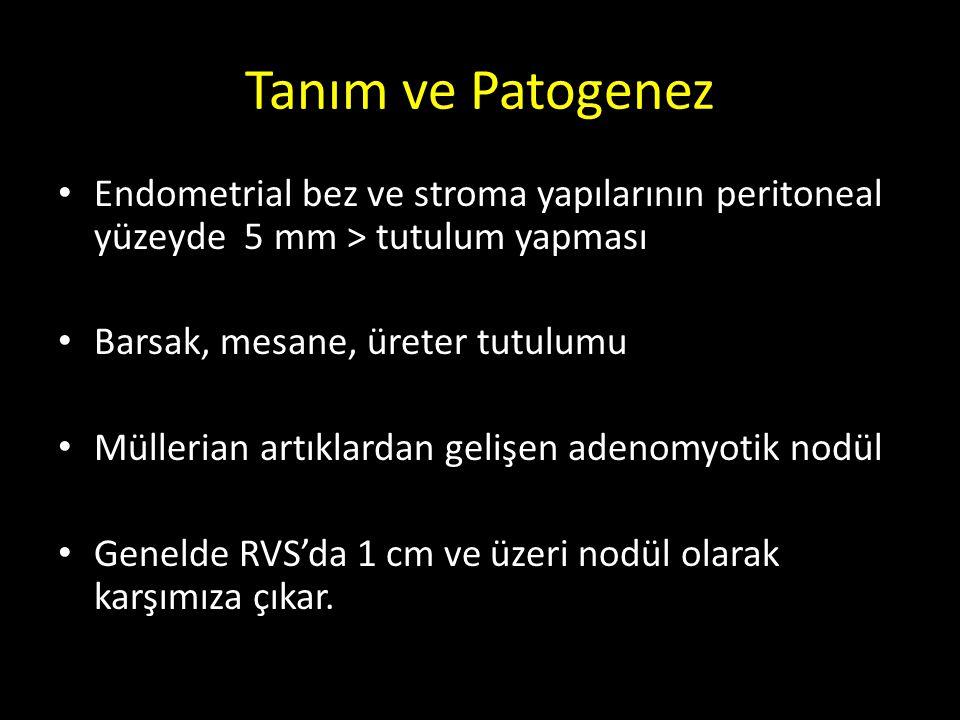 Tanım ve Patogenez Endometrial bez ve stroma yapılarının peritoneal yüzeyde 5 mm > tutulum yapması.