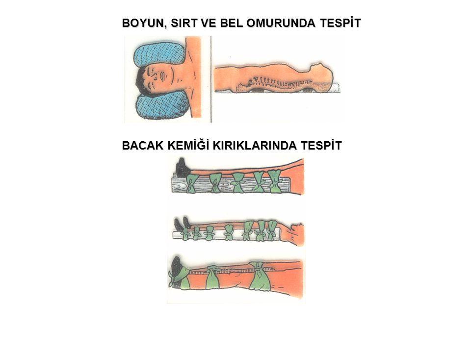 BOYUN, SIRT VE BEL OMURUNDA TESPİT
