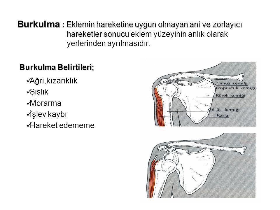 Burkulma : Eklemin hareketine uygun olmayan ani ve zorlayıcı