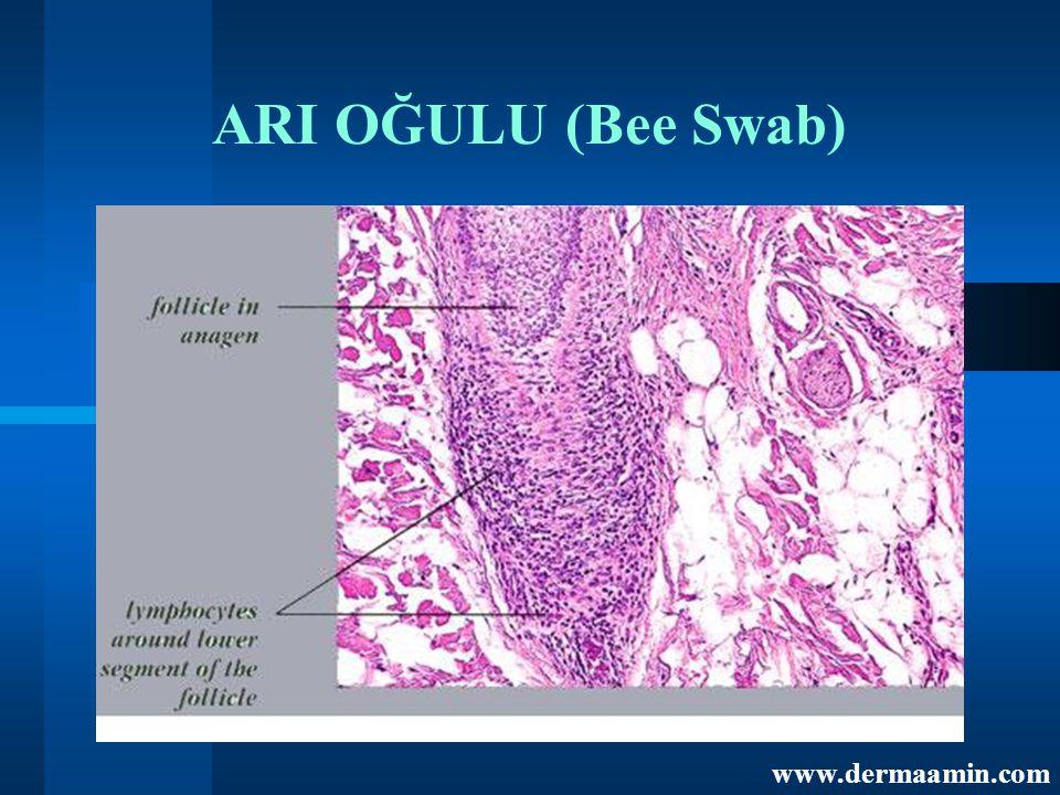 ARI OĞULU (Bee Swab) www.dermaamin.com