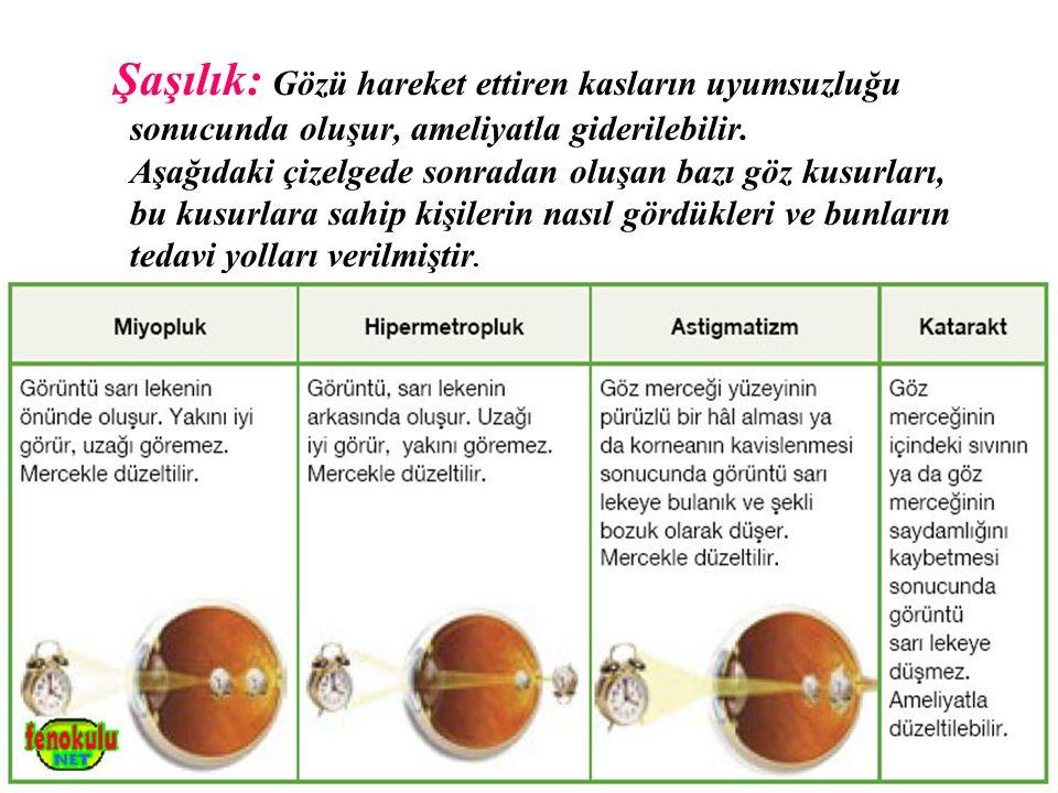 Şaşılık: Gözü hareket ettiren kasların uyumsuzluğu sonucunda oluşur, ameliyatla giderilebilir.