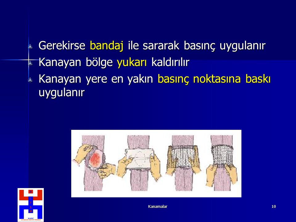 Gerekirse bandaj ile sararak basınç uygulanır