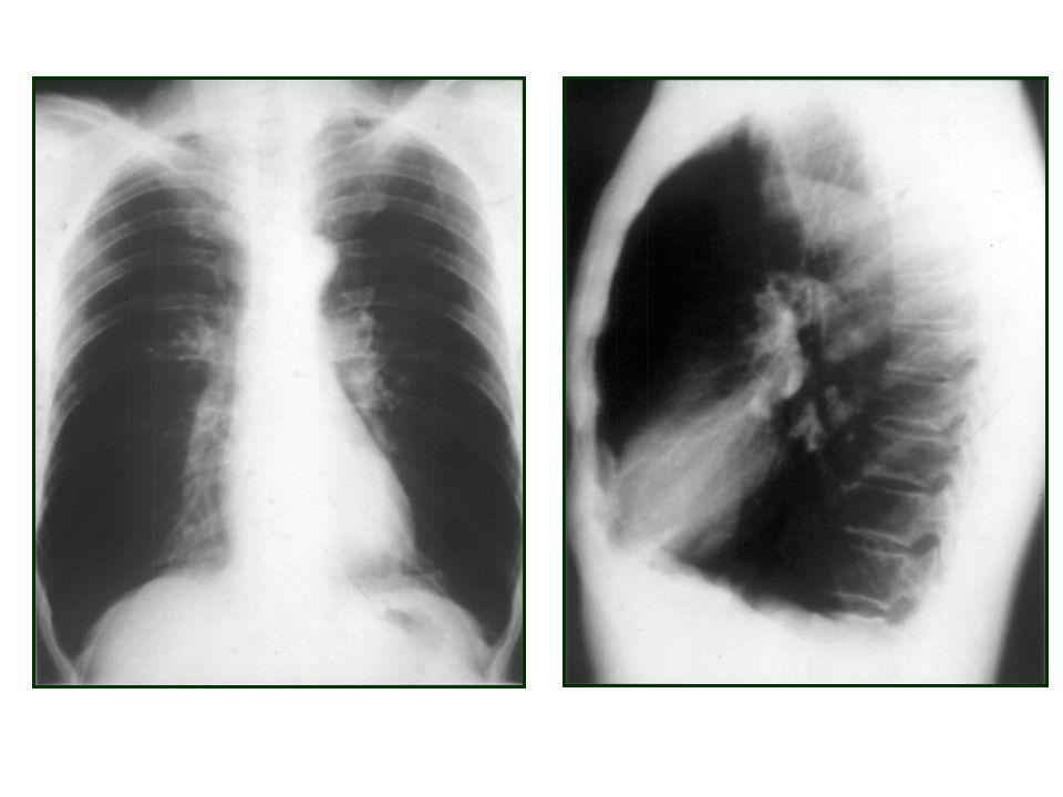 Bu örnekte görüldüğü gibi KOAH hastalarında alt akciğer alanları genişlemiş, lateral grafide diafragm düzleşmiş ve retrosternal alan artmıştır.