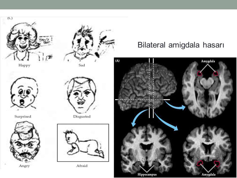Bilateral amigdala hasarı