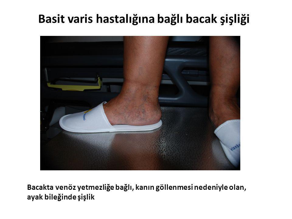 Basit varis hastalığına bağlı bacak şişliği
