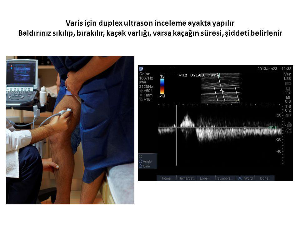Varis için duplex ultrason inceleme ayakta yapılır Baldırınız sıkılıp, bırakılır, kaçak varlığı, varsa kaçağın süresi, şiddeti belirlenir