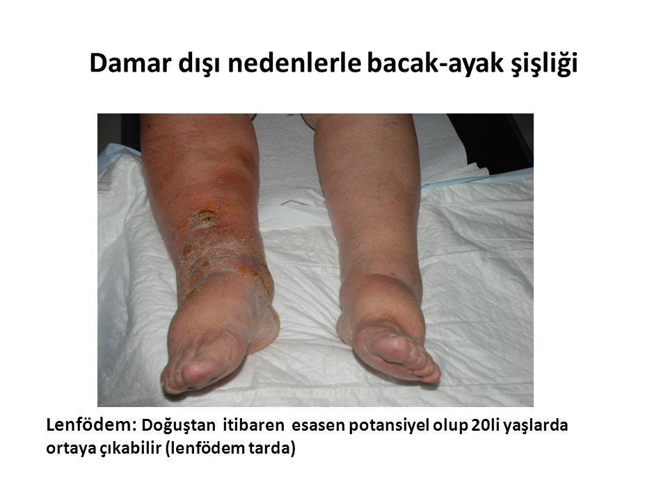 Damar dışı nedenlerle bacak-ayak şişliği
