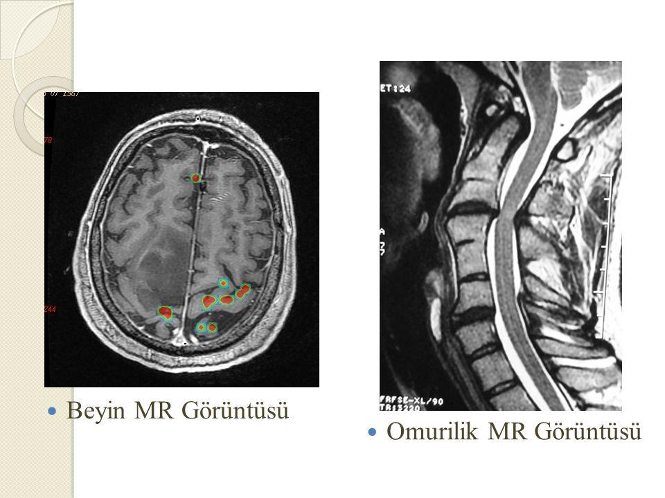 Beyin MR Görüntüsü Omurilik MR Görüntüsü