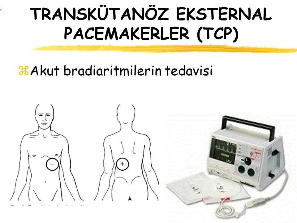 TRANSKÜTANÖZ EKSTERNAL PACEMAKERLER (TCP)
