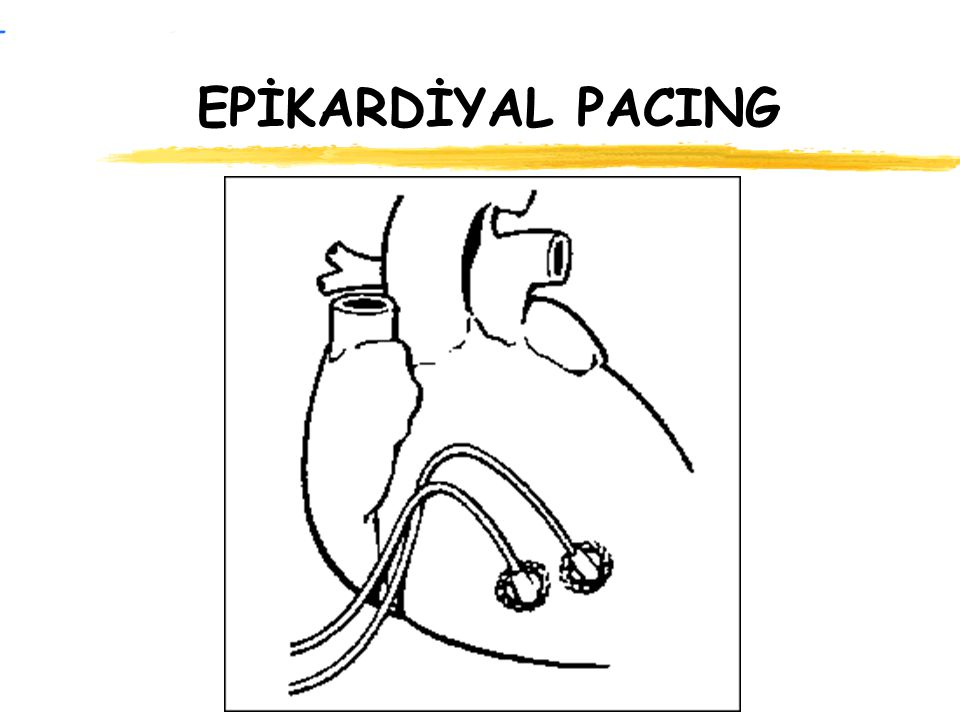 EPİKARDİYAL PACING