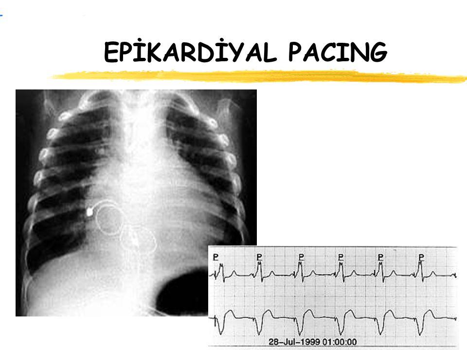 EPİKARDİYAL PACING Slide'ta akciğer filminde epikardiyal yaklaşım ile implante edilmiş, çift odacıklı bir pace sistemi görülmektedir.