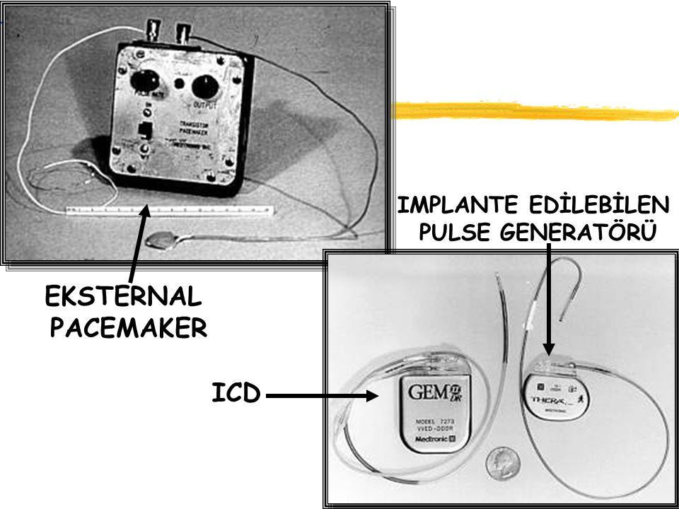EKSTERNAL PACEMAKER ICD