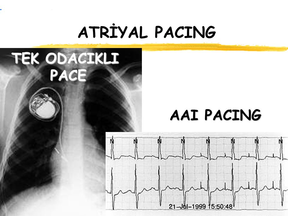ATRİYAL PACING TEK ODACIKLI PACE AAI PACING