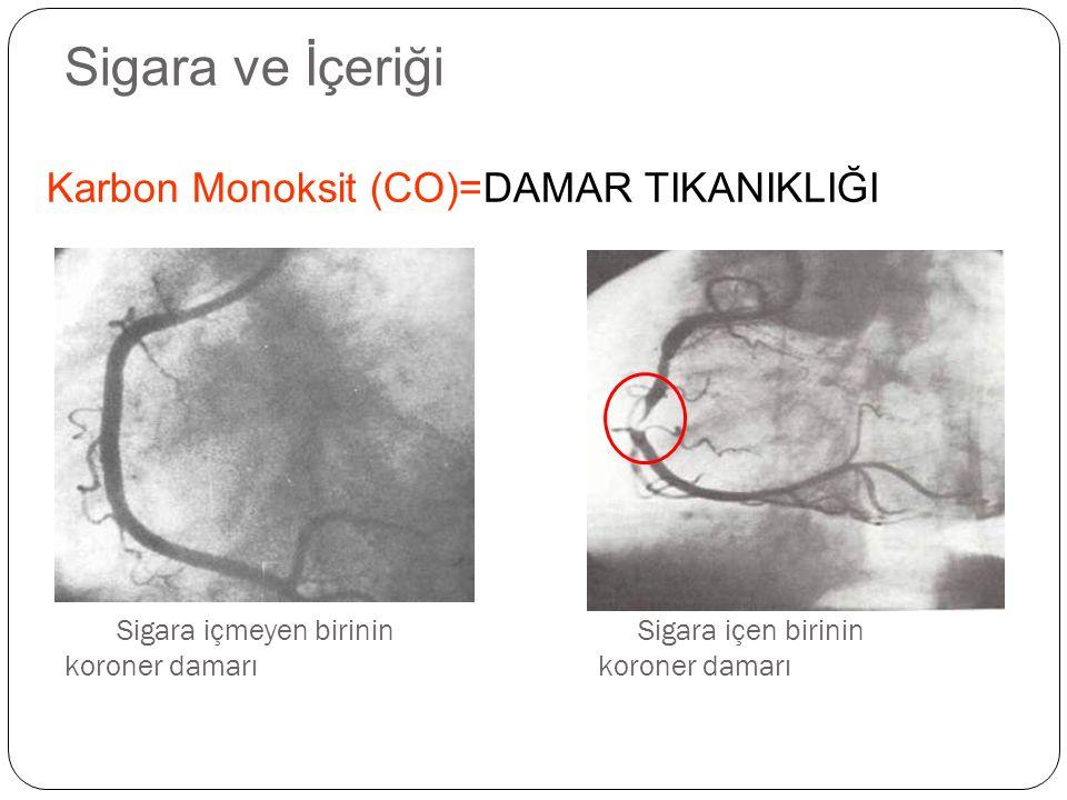 Sigara ve İçeriği Karbon Monoksit (CO)=DAMAR TIKANIKLIĞI
