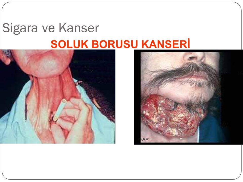 Sigara ve Kanser SOLUK BORUSU KANSERİ 35