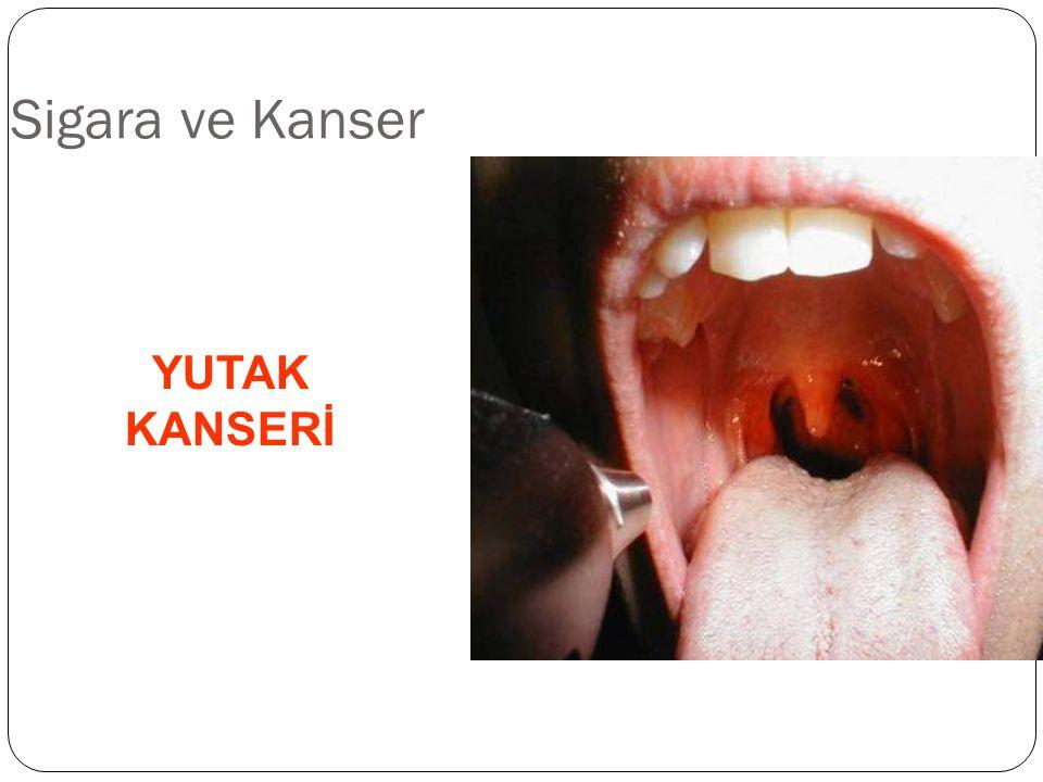 Sigara ve Kanser YUTAK KANSERİ 38