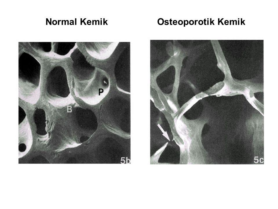 Normal Kemik Osteoporotik Kemik PATHOGENESIS OF OSTEOPOROSIS