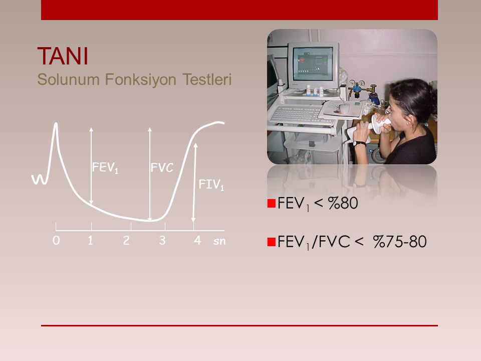 TANI Solunum Fonksiyon Testleri FEV1 < %80 FEV1/FVC < %75-80