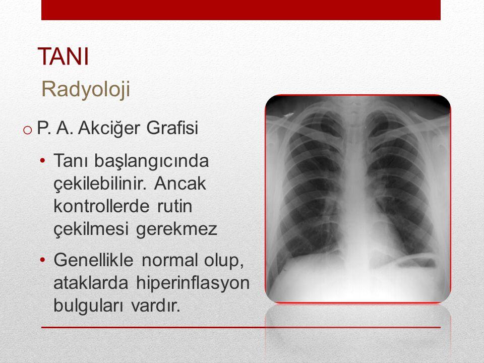 TANI Radyoloji P. A. Akciğer Grafisi