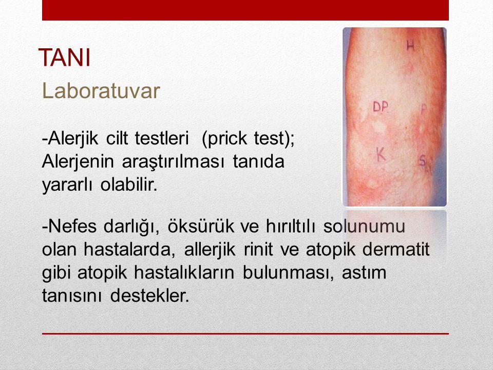 TANI Laboratuvar. -Alerjik cilt testleri (prick test); Alerjenin araştırılması tanıda yararlı olabilir.