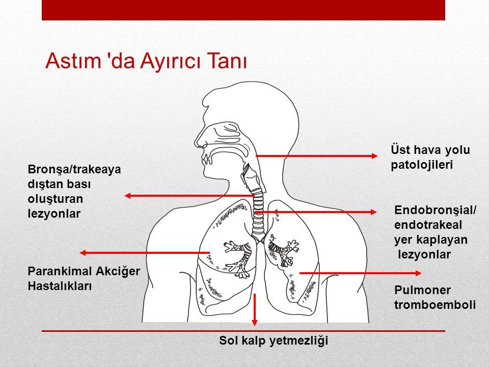 Astım da Ayırıcı Tanı Üst hava yolu patolojileri Bronşa/trakeaya