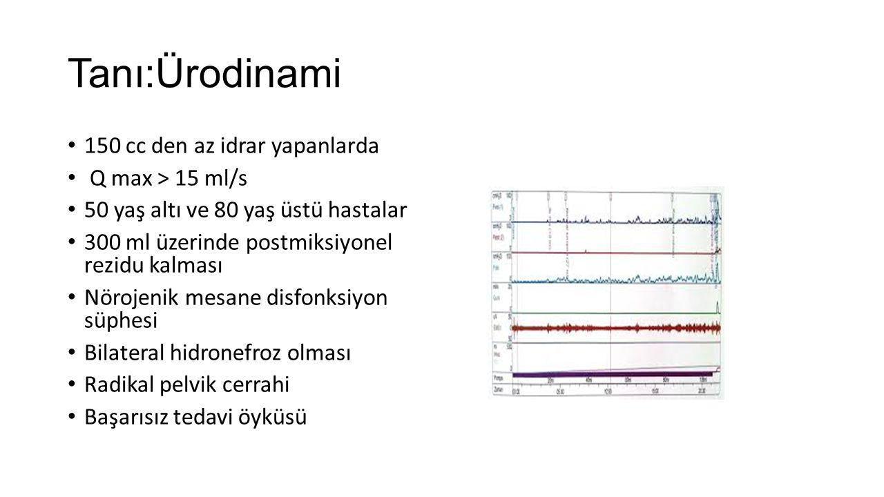 Tanı:Ürodinami 150 cc den az idrar yapanlarda Q max > 15 ml/s