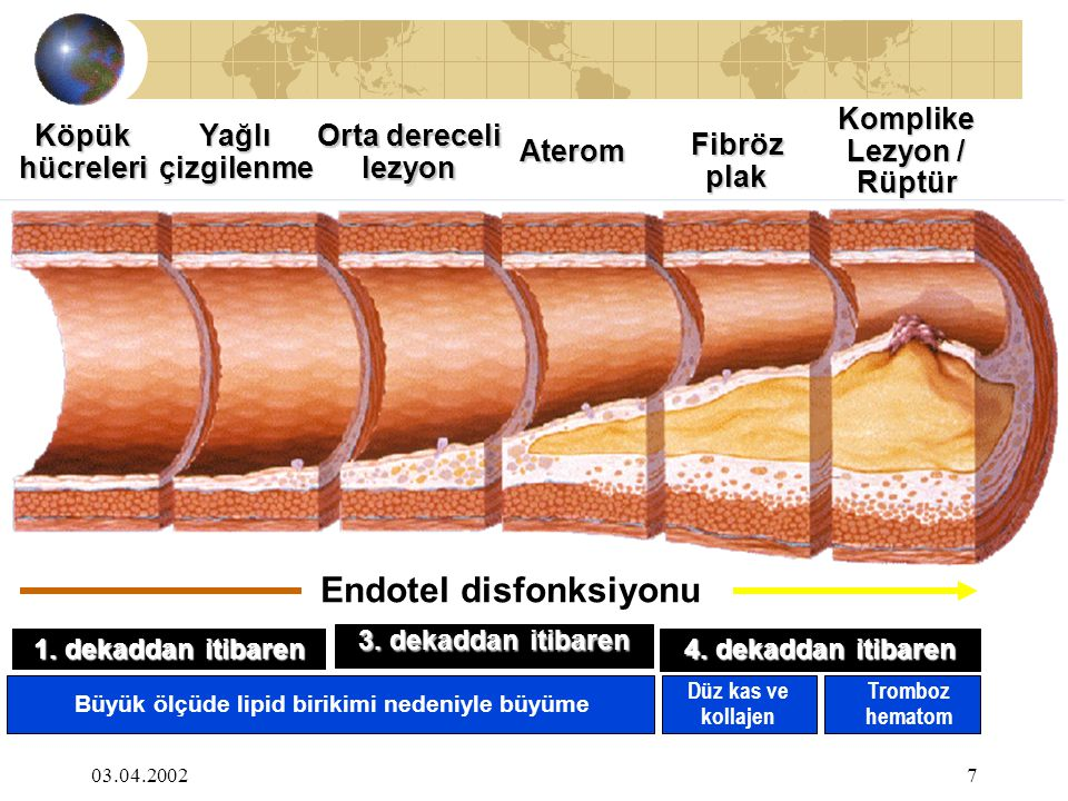 Endotel disfonksiyonu Büyük ölçüde lipid birikimi nedeniyle büyüme