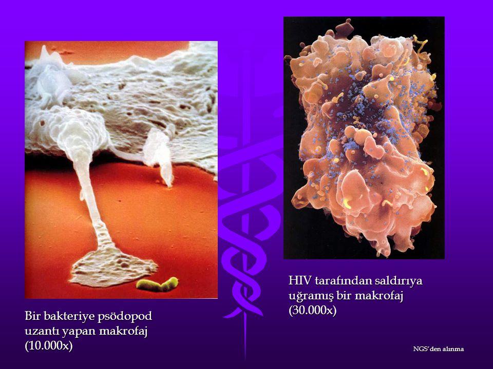 HIV tarafından saldırıya uğramış bir makrofaj (30.000x)