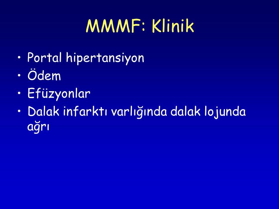 MMMF: Klinik Portal hipertansiyon Ödem Efüzyonlar