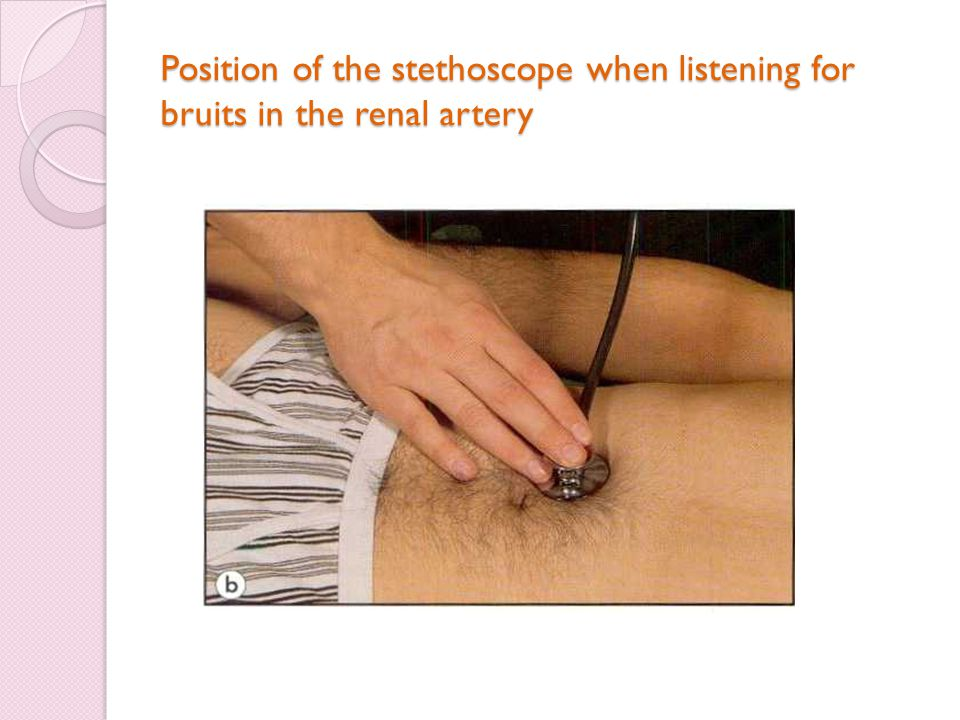 Position of the stethoscope when listening for bruits in the renal artery