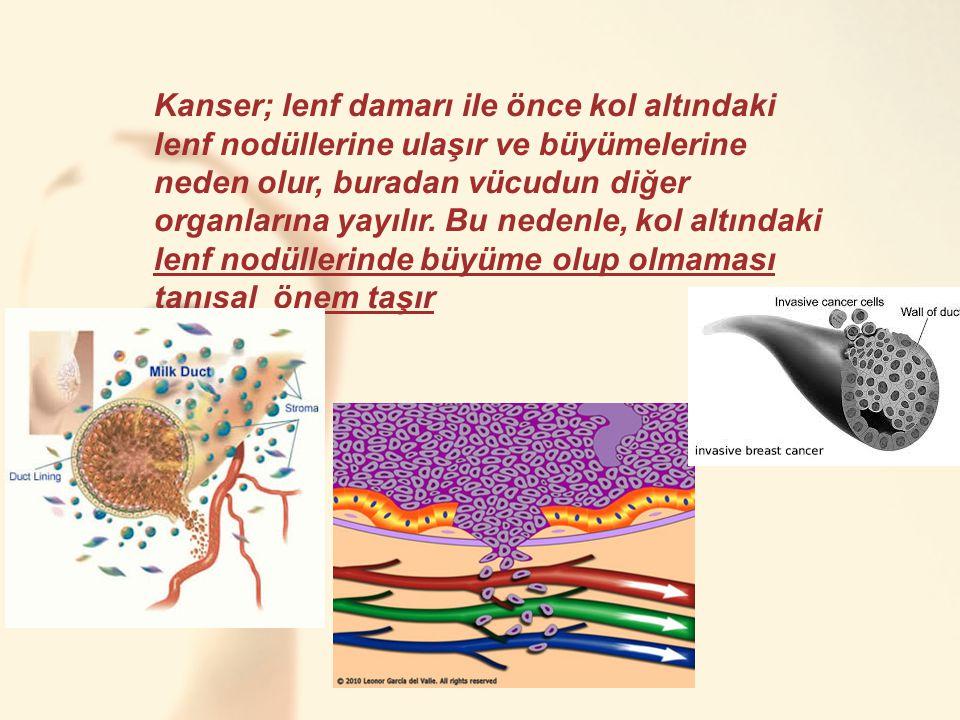 Kanser; lenf damarı ile önce kol altındaki lenf nodüllerine ulaşır ve büyümelerine neden olur, buradan vücudun diğer organlarına yayılır. Bu nedenle, kol altındaki lenf nodüllerinde büyüme olup olmaması tanısal önem taşır