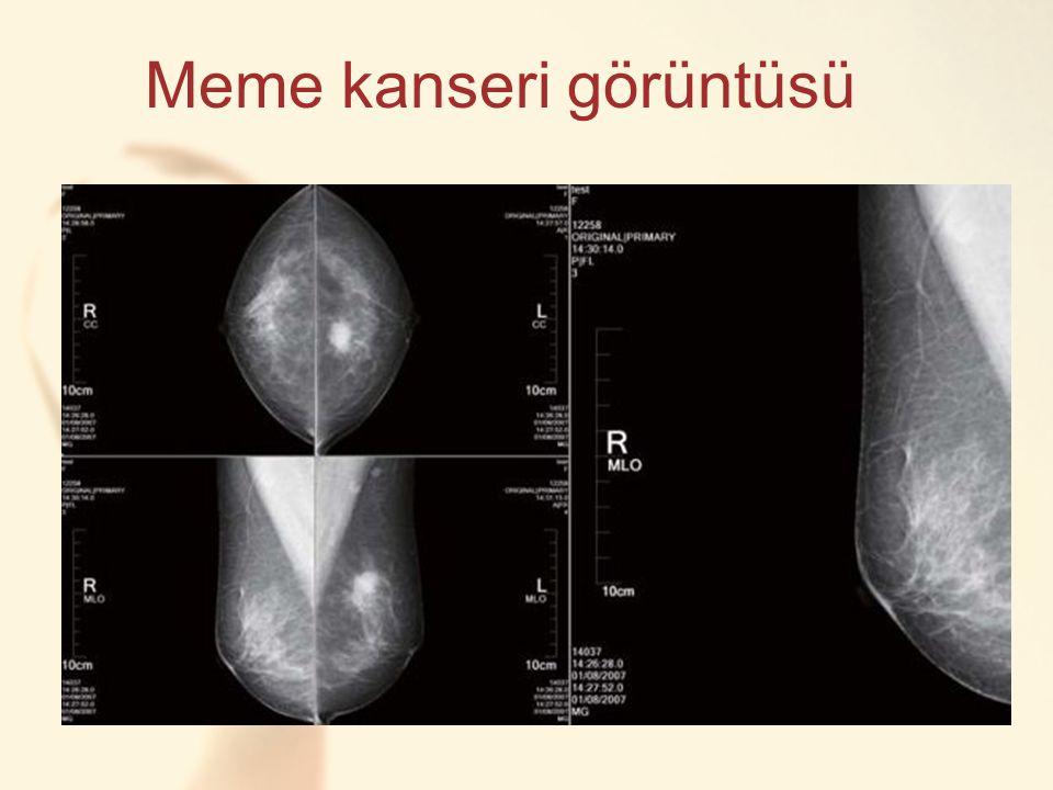 Meme kanseri görüntüsü