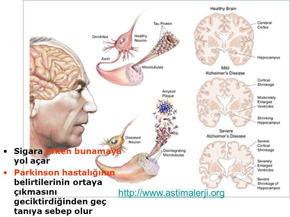 http://www.astimalerji.org Sigara erken bunamaya yol açar