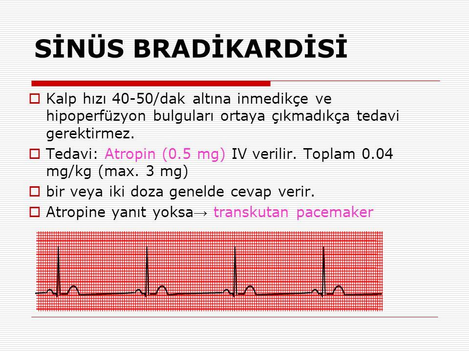 SİNÜS BRADİKARDİSİ Kalp hızı 40-50/dak altına inmedikçe ve hipoperfüzyon bulguları ortaya çıkmadıkça tedavi gerektirmez.