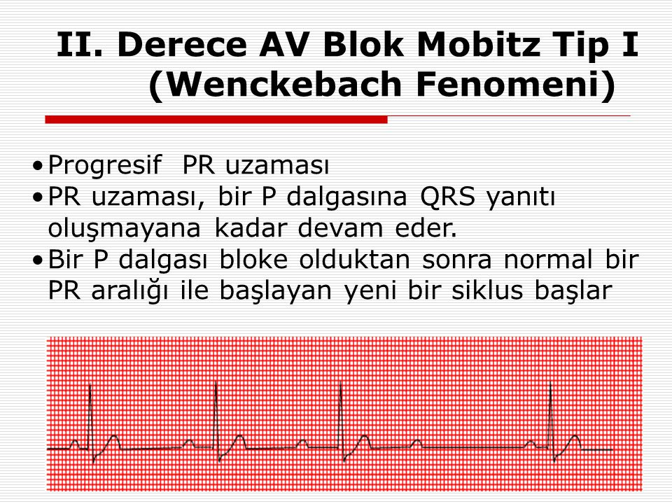 II. Derece AV Blok Mobitz Tip I (Wenckebach Fenomeni)