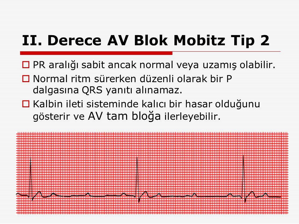 II. Derece AV Blok Mobitz Tip 2