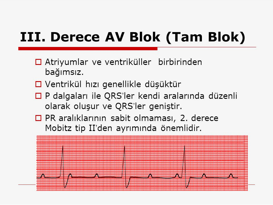 III. Derece AV Blok (Tam Blok)