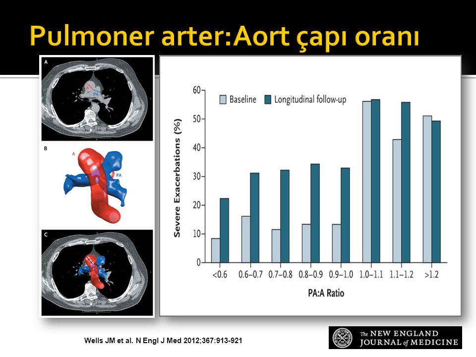 Pulmoner arter:Aort çapı oranı