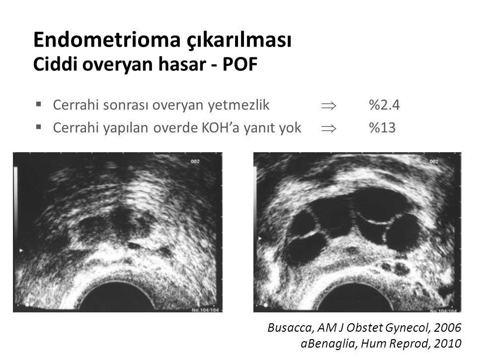 Endometrioma çıkarılması Ciddi overyan hasar - POF