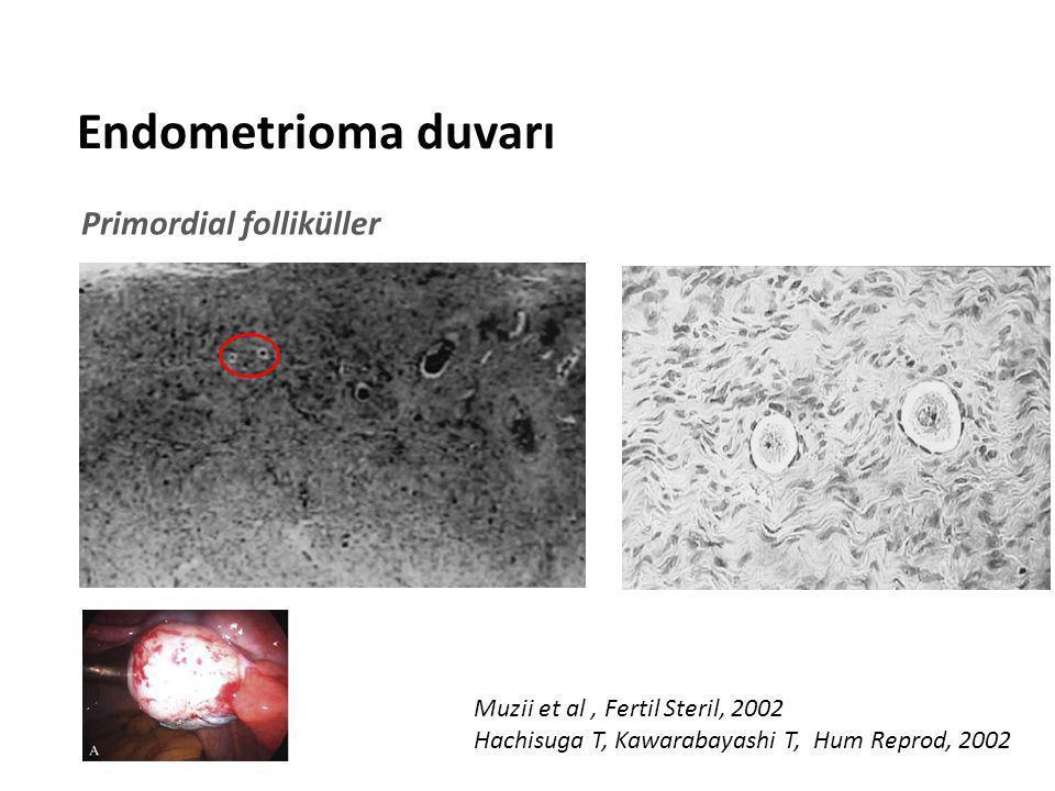 Endometrioma duvarı Primordial folliküller