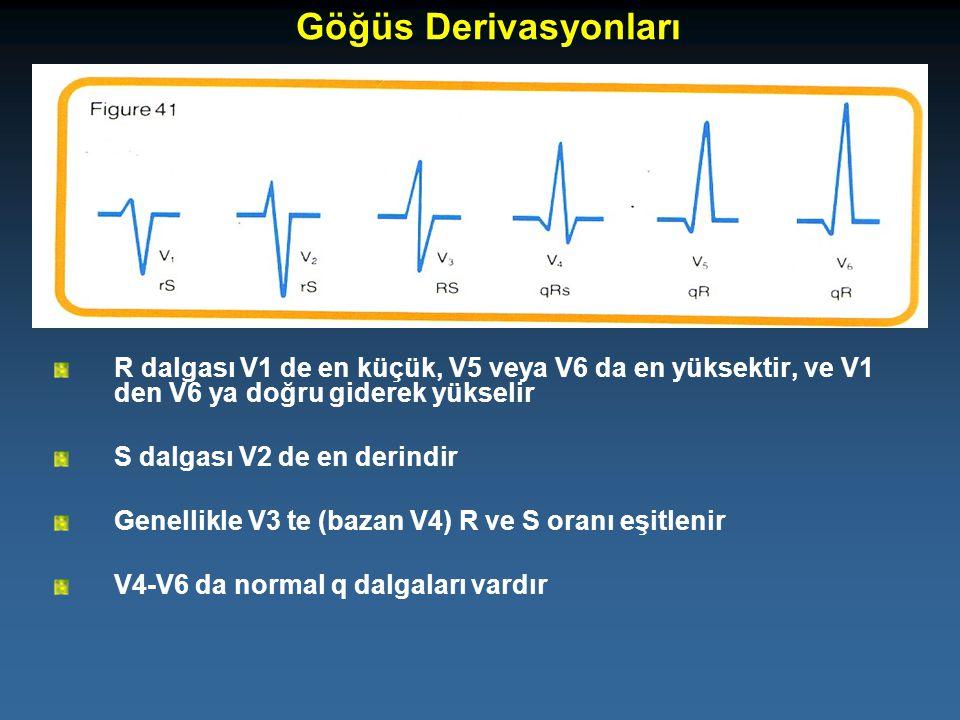 Göğüs Derivasyonları R dalgası V1 de en küçük, V5 veya V6 da en yüksektir, ve V1 den V6 ya doğru giderek yükselir.