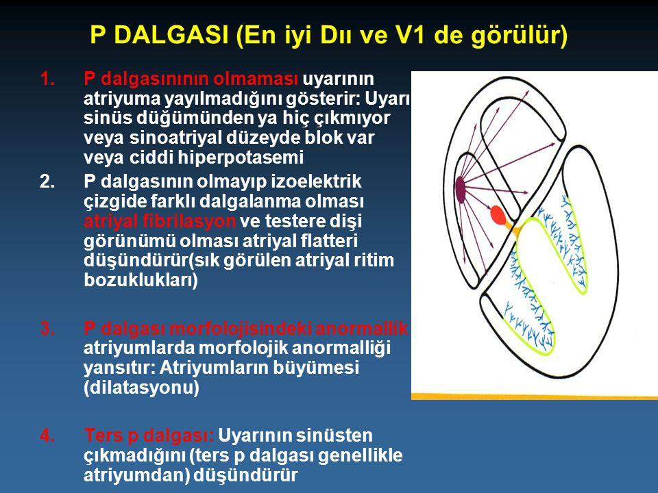 P DALGASI (En iyi Dıı ve V1 de görülür)