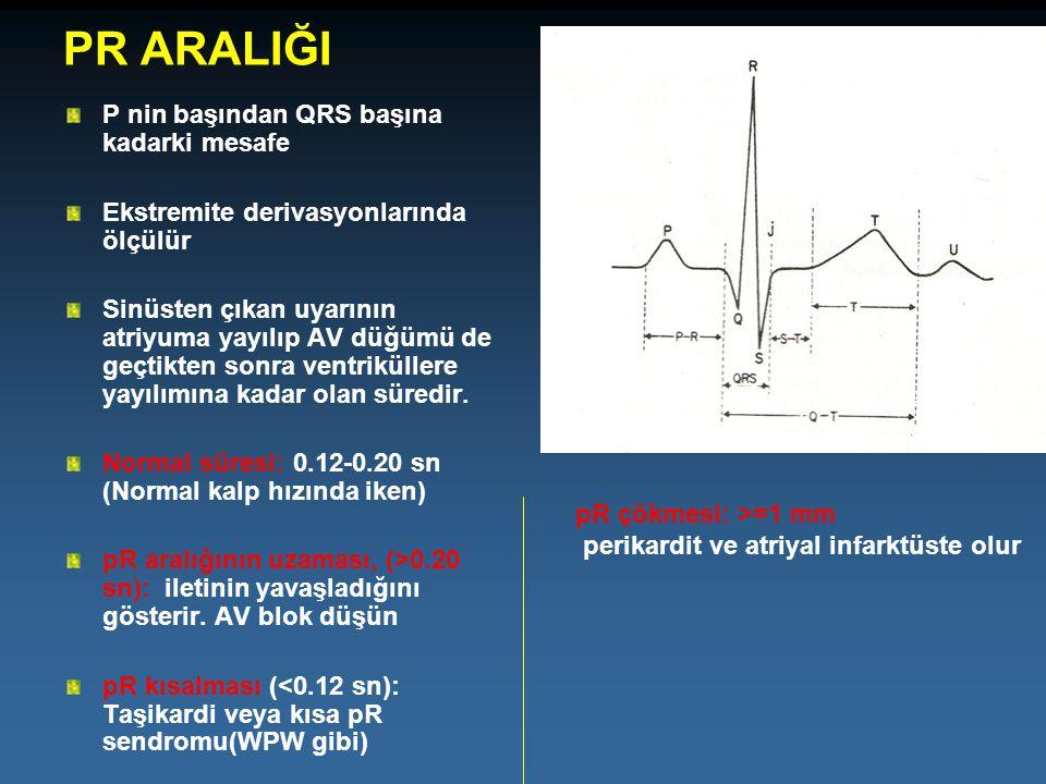 PR ARALIĞI P nin başından QRS başına kadarki mesafe